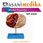 Manikin Model Placenta ( Phantom Plasenta )